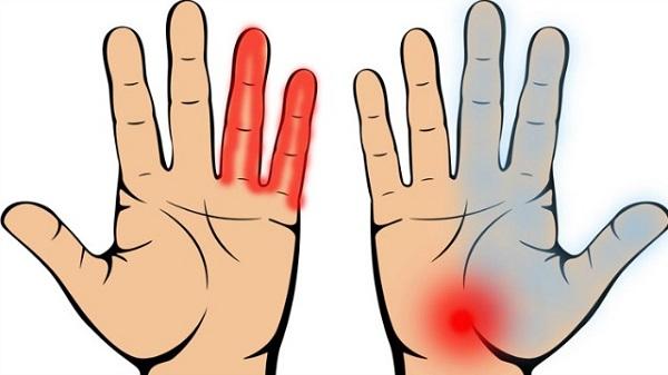 Inilah 7 Pertanda Penyakit Yang Kita Bisa Tahu Hanya Dari Telapak Tangan. Rugi Kalau Anda Tak Baca